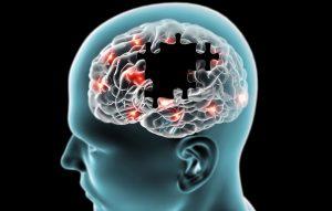 Bild alzheimers sjukdom kurs Föreingen Kognitiva sjukdomar